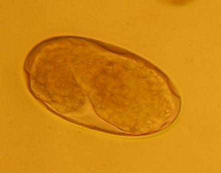 Eier des Hakenwurms (Foto: VPL 'Der Wald')
