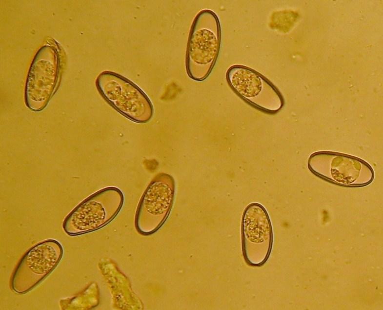 Kokzidien unter dem Mikroskop (Foto: VPL 'Der Wald')