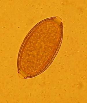 Peitschenwurm Ei (Foto VPL)