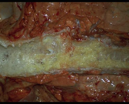 Großen Lungenwurm in die Lungen
